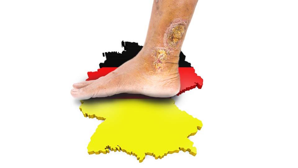 Ulcus cruris venosum in Deutschland