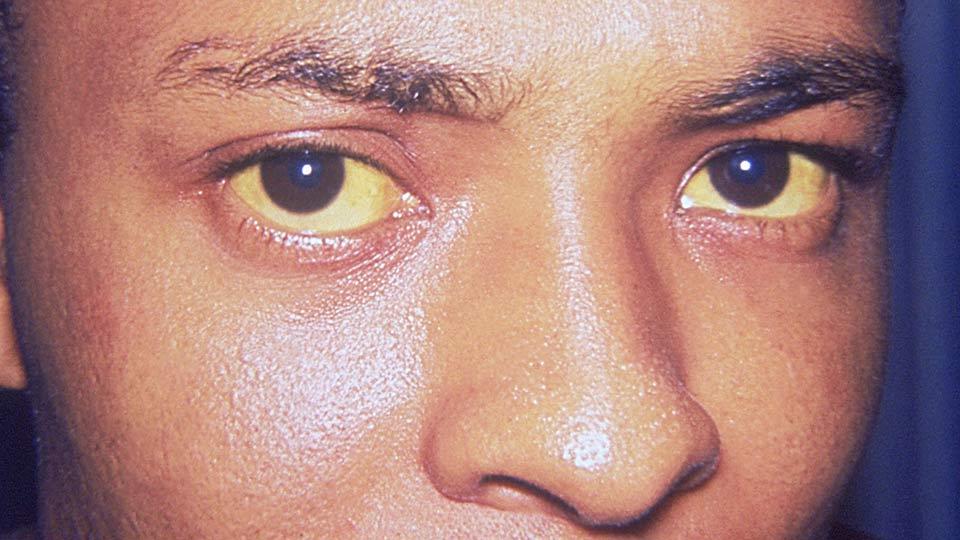 Hepatitis A verursacht Gelbsucht.