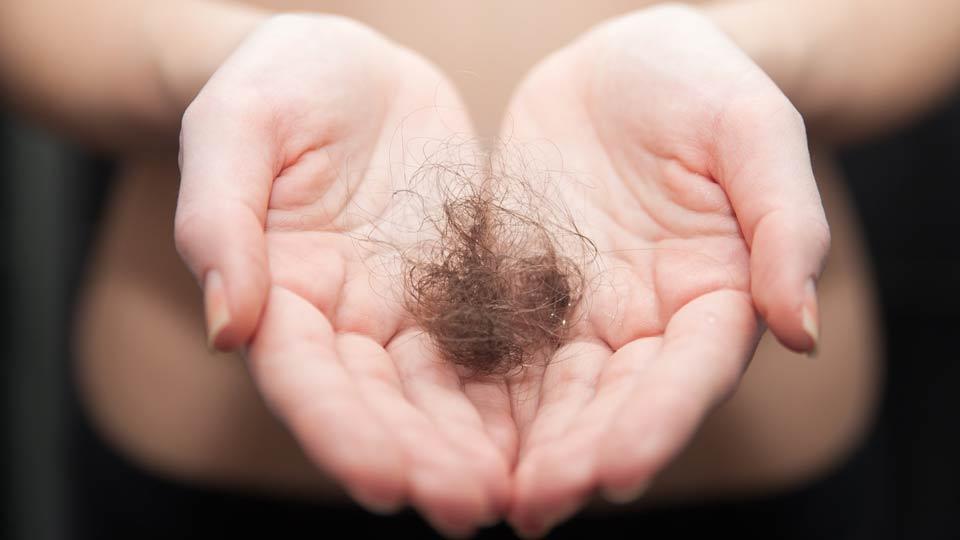Dauerhafter Haarverlust als Risiko der Chemotherapie