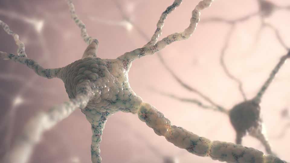Bei einem epileptischen Anfall feuern unkontrolliert Neuronengruppen im Gehirn.