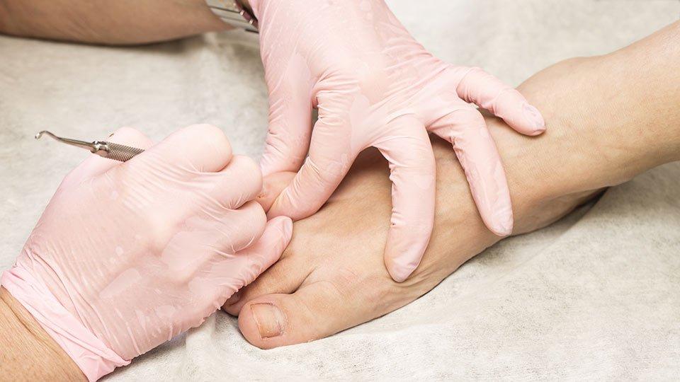 Podologische Behandlung eines Patienten.