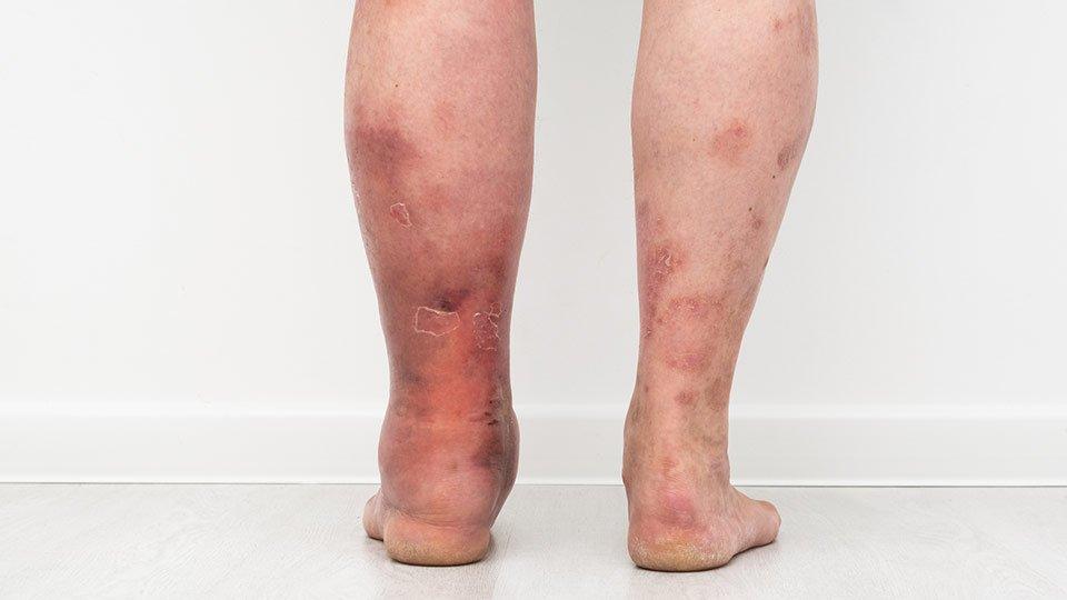 Lymphödem an den Beinen.