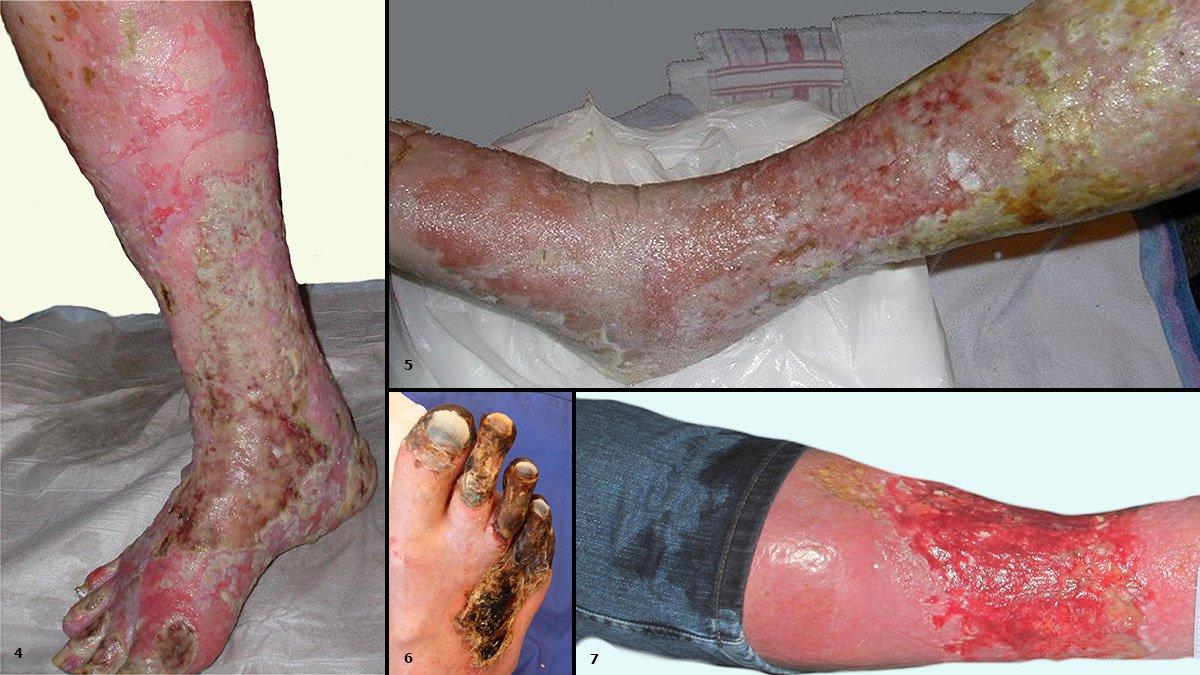 4: Wundinfektion 5: Hohe Exsudatmengen bei Ulcus cruris venosum in der initialen Entstauungsphase 6: Trockene Nekrosen bei kritischer Ischämie 7: Durchnässte Kleidung aufgrund hoher Wundexsudation